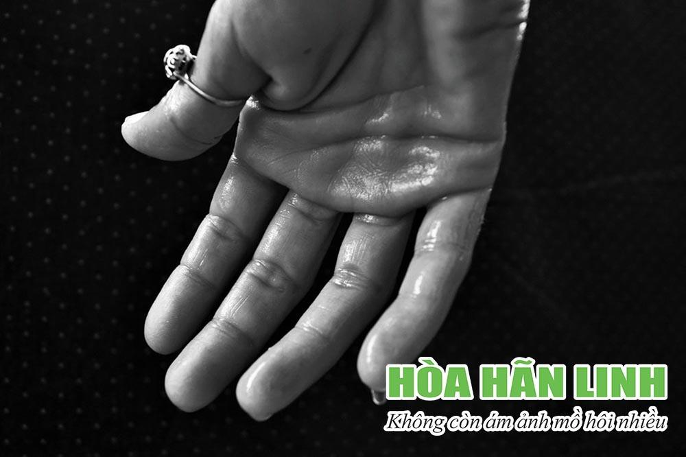 Đổ mồ hôi tay chân – nguyên nhân và cách trị hiệu quả